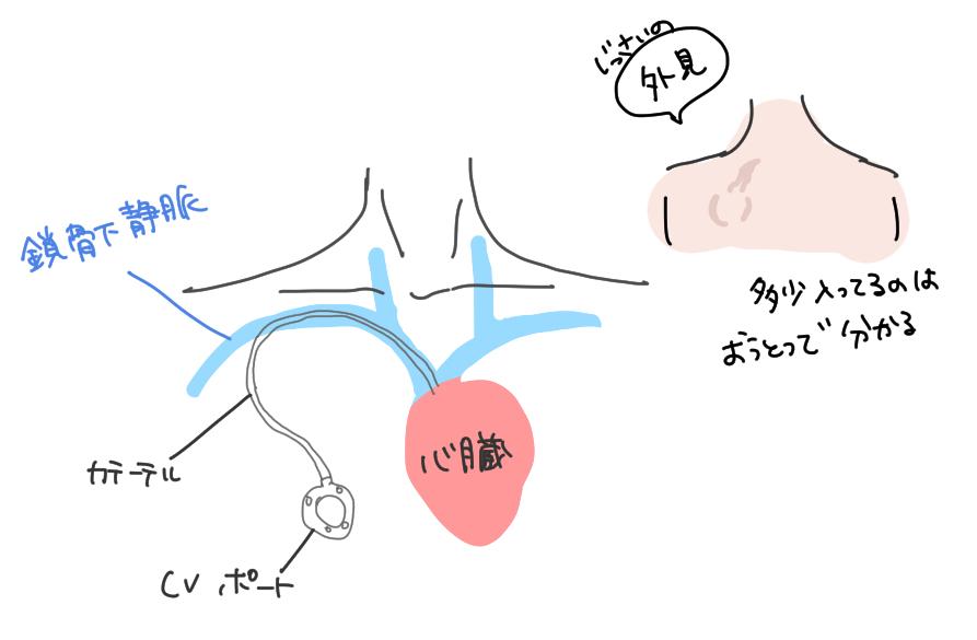 CVポートが体内にどう入っているのかを説明したイラスト