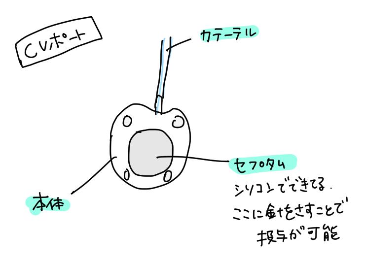 CVポートについて説明したイラスト図