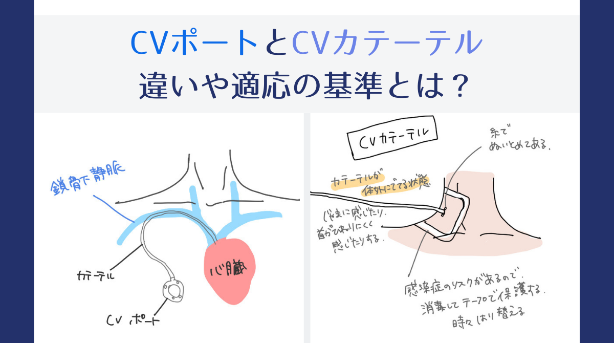 CVポートとCVカテーテルの違い